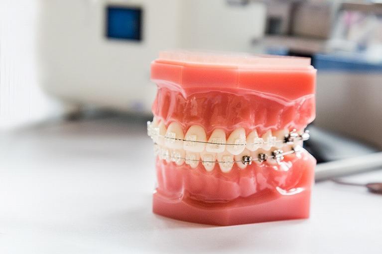 小児歯科(子供の矯正)とは