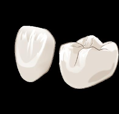 銀歯を白く美しい歯に! セラミック治療によるメタルフリー治療