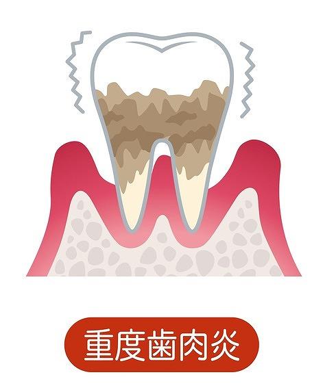 重度歯肉炎