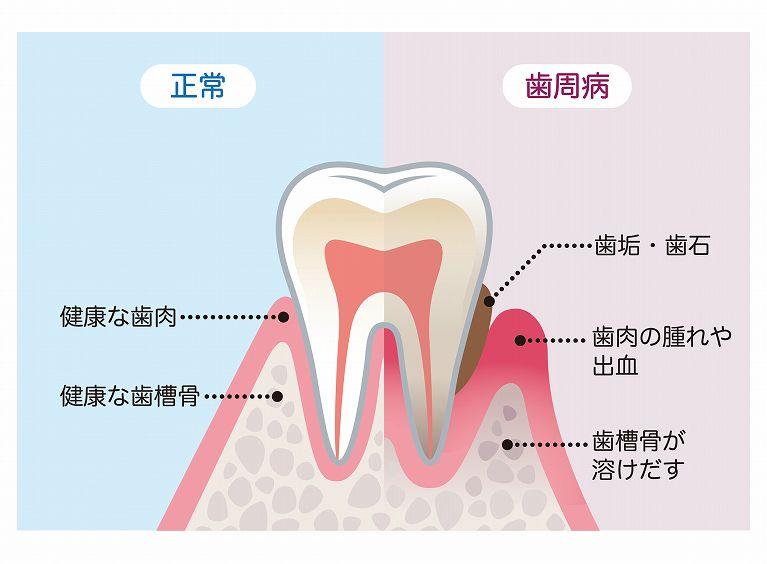 原因や症状に合わせた歯周病治療