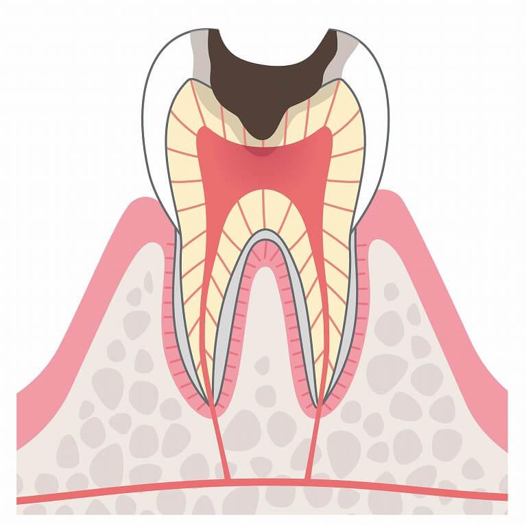 虫歯が神経に到達している