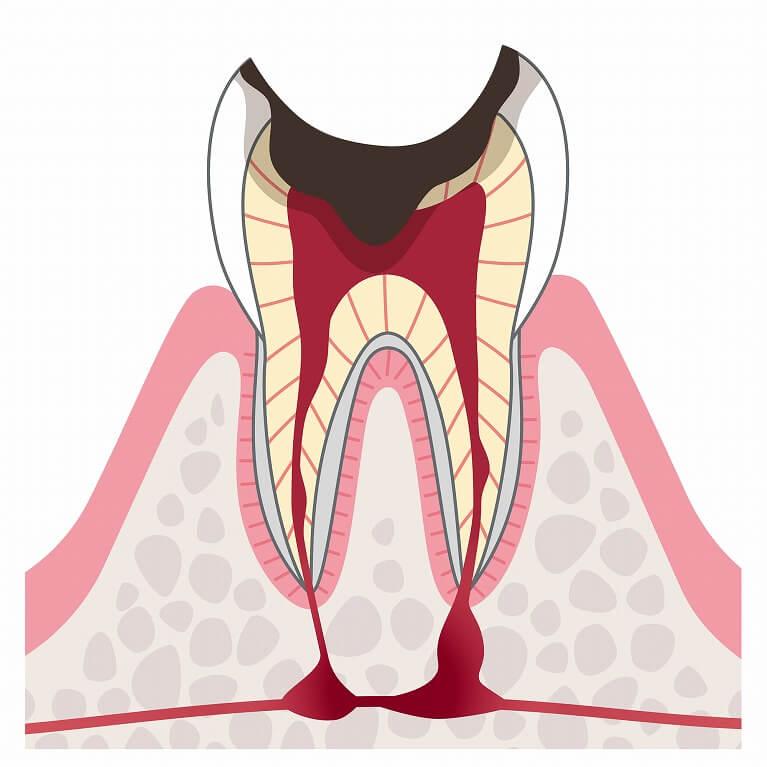 歯根まで到達した虫歯