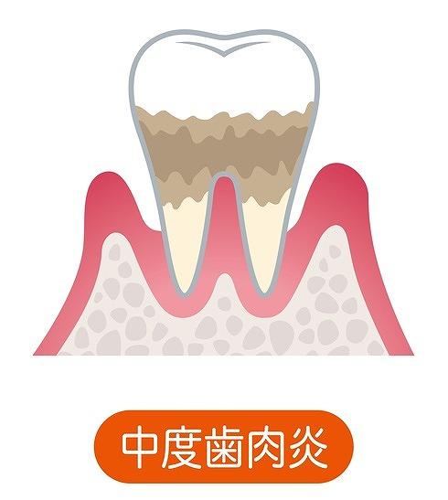 中度歯肉炎
