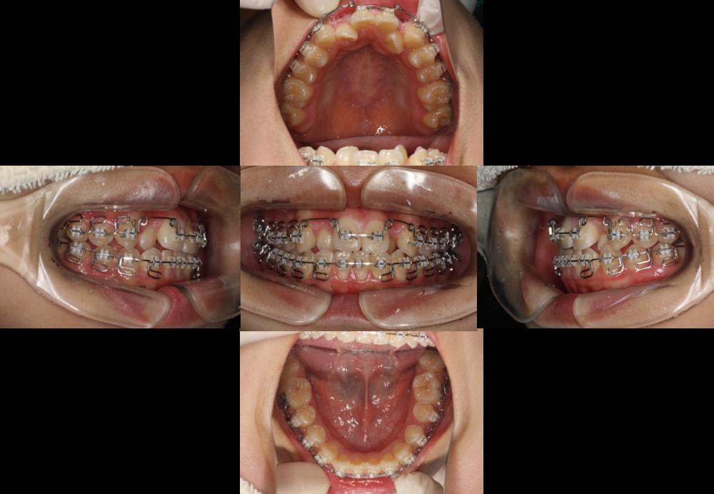 矯正歯科(マルチブラケット装置)