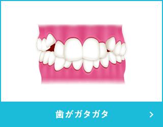 歯がガタガタ